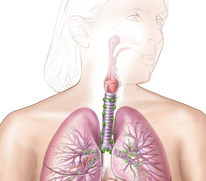 Medical illustration depicting respiratory system, highlighting lungs and trachea