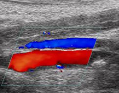 Esta es una foto de un ultrasonido Doppler a color mostrando restauración del flujo sanguíneo después de una histotripsy