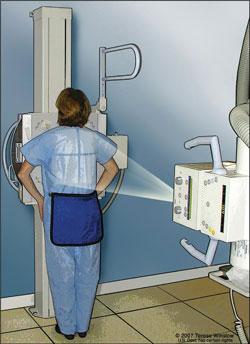 Esta es una ilustración de una mujer sometiéndose a una radiografía de tórax