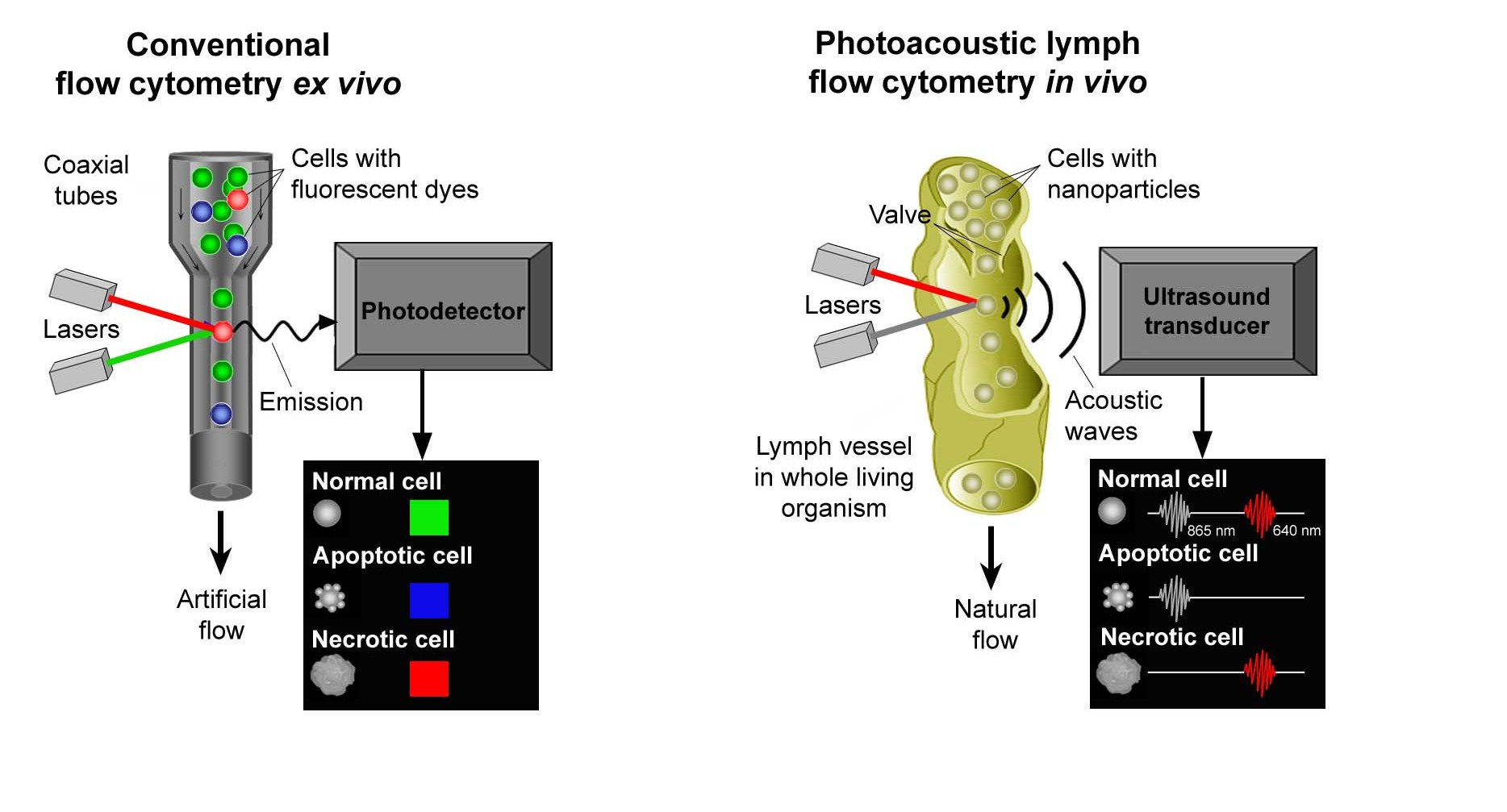 Photoacoustic flow cytometry is based on an optical effect discovered by Alexander Graham Bell and conventional flow cytometry (left), which simultaneously measures and analyzes single cells as they stream through a beam of light in an artificial tube. The technique takes advantage of lymphatic anatomy and physiology to count and identify individual cells in lymph flow (right).