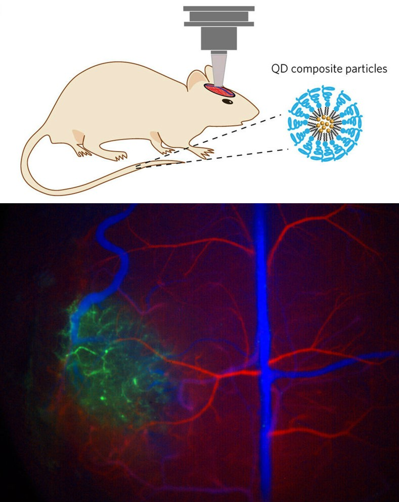 Quantum dot imaging of mouse brain tumor