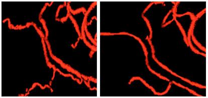 """Ejemplo de la """"tortuosidad"""" anormal de los vasos (ondulaciones anormales en los vasos) vista en la presencia del cáncer (izquierda) y el alisamiento de los mismos vasos después de un tratamiento exitoso (derecha). Las imágenes de los vasos fueron extraídas de escaneos por ARM realizados con espacio de casi 6 semanas. Note que los vasos a la izquierda muestran muchos dobleces pequeños en cada doblez grande. Los pacientes exhibidos estuvieron bien clínicamente durante casi un año."""