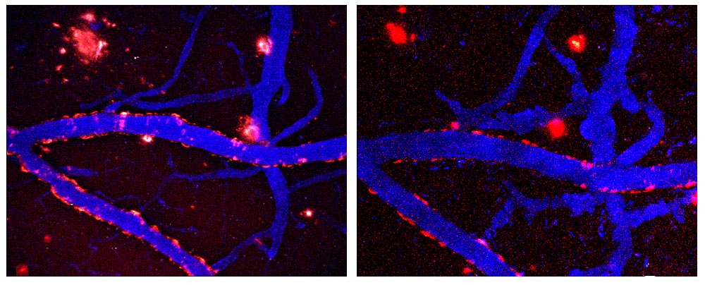 """Estas imágenes representan la imagen longitudinal de placas seniles durante el tratamiento diario con el componente curcumina del curry, el cual es un agente natural anti-oxidante y anti-inflamatorio. La imagen a la izquierda muestra los depósitos amiloides marcados (rojos) antes del tratamiento, y la imagen a la derecha muestra el mismo volumen de imagen en el cerebro 7 días después de tratamientos sistémicos con curcumina. Los vasos sanguíneos se muestran en azul (angiografía con """"Texas red dextran""""). Note que las placas individuales se depuran o reducen dentro de este tiempo. Para más detalles, vea Garcia-Alloza et al., J. Neurochem., 2007."""