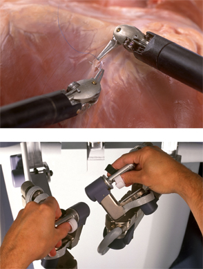 Researchers are developing visual feedback and force sensors to create a robot-assisted surgical system.