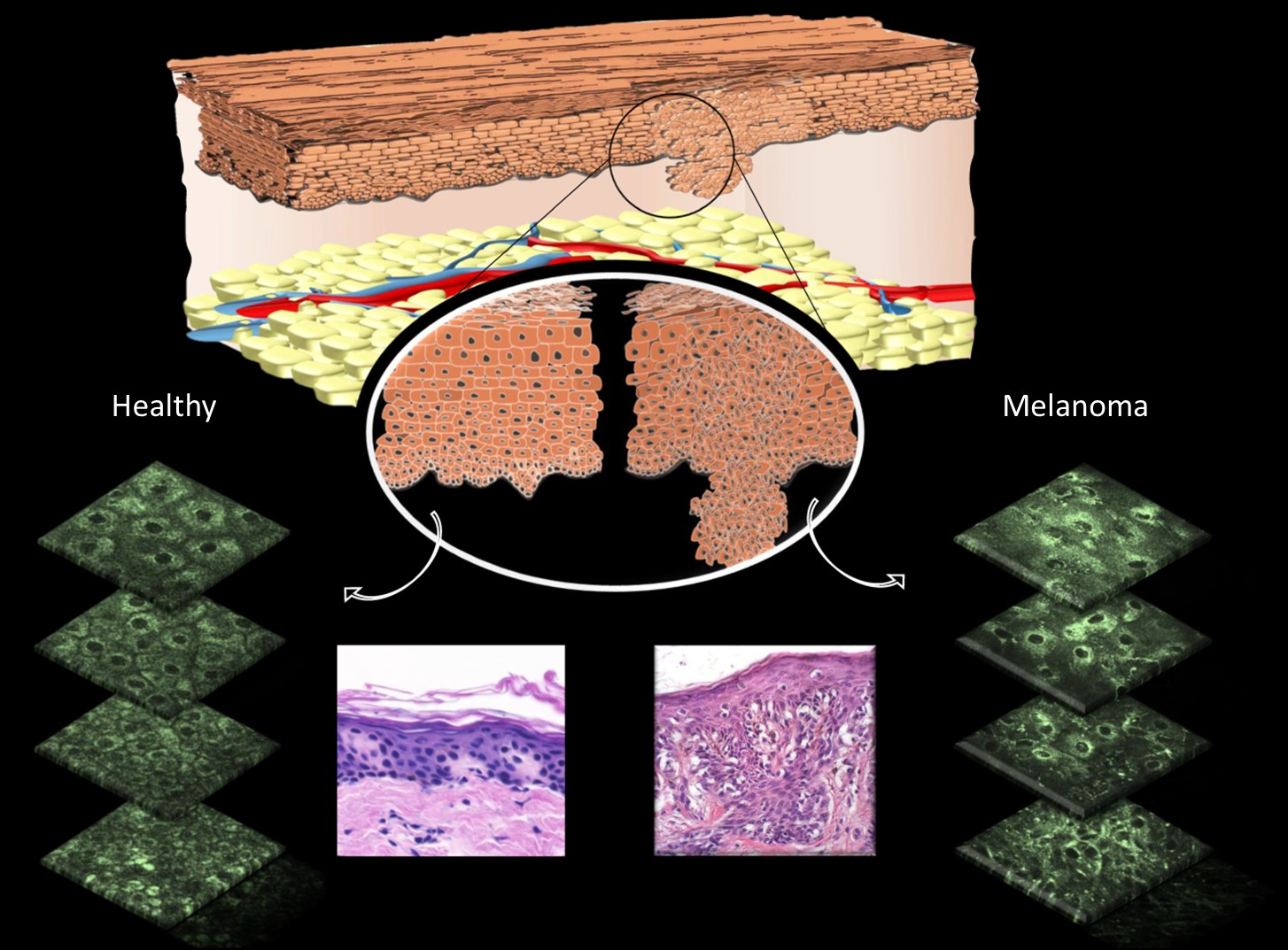 Diagram of melanoma formation and detection in basal skin layers