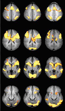 3 Cloumns of different brain scans.