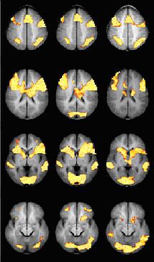 Los escáneres cerebrales de personas con un trastorno de lectura o ADHD muestran una mayor actividad cuando son tratadas con metilfenidato (columna central) en relación con las tratadas con placebo (columna izquierda). Se muestran los escáneres cerebrales de personas sanas para su comparación (columna derecha). Cortesía del Dr. Keith Shafritz, Centro Médico de la Universidad de Duke (Duke University Medical Center).