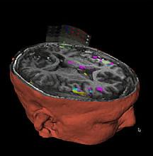 Los investigadores están desarrollando un sistema de obtención de imágenes que puede conducir a mejores tratamientos quirúrgicos para los pacientes con epilepsia. Esta imagen muestra la actividad normal del cerebro. Cortesía de la imagen del Dr. James Duncan, Yale University.