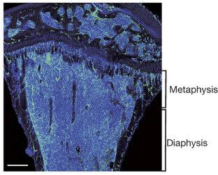 Cross-section of femur bone