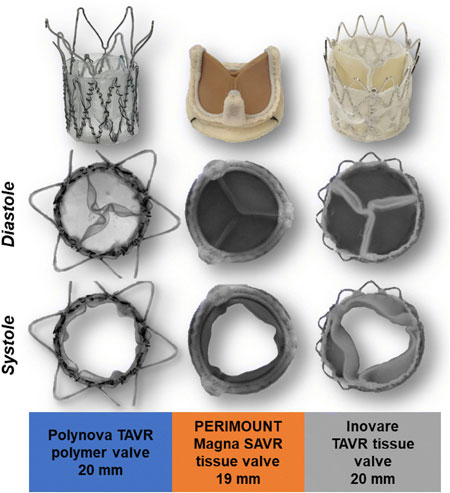 comparison of polymer and animal tissue valves