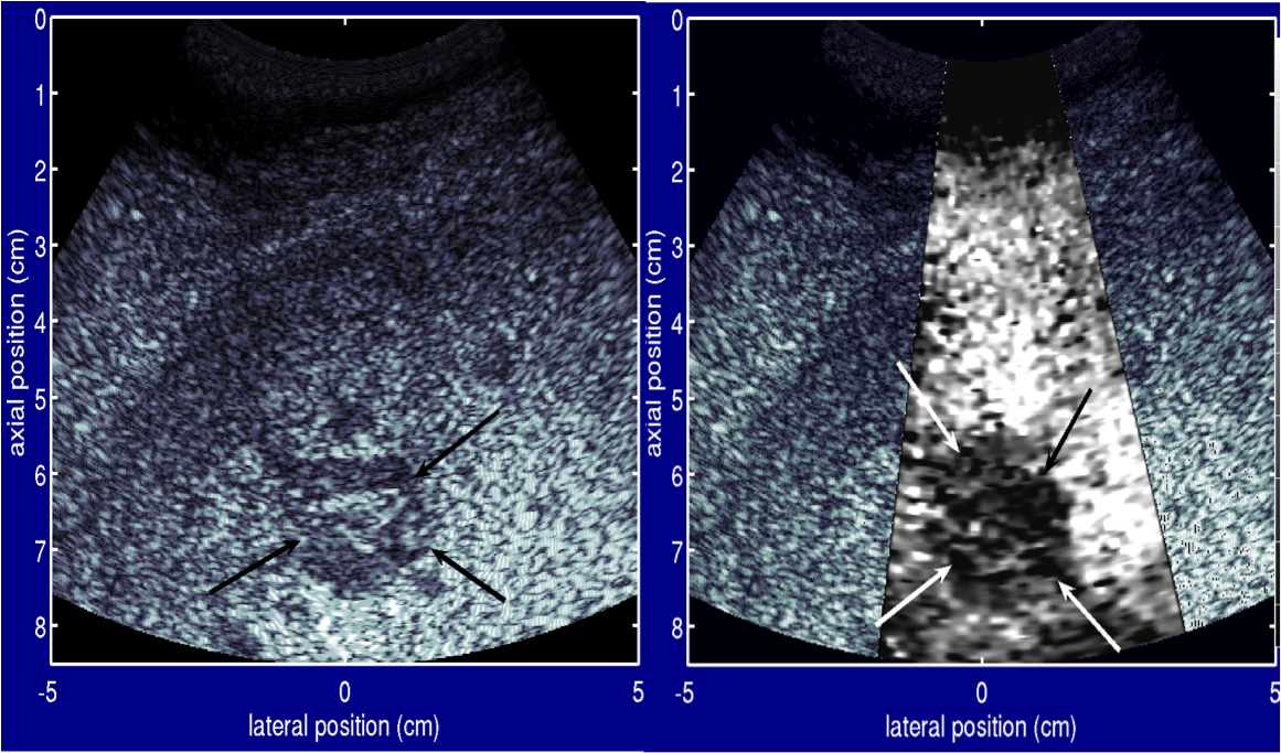 This is an image of a metastatic melanoma on the liver.  The image compares the standard ultrasound with the ARFI image.  The metastatic image appears darker than the surrounding liver tissue in the ARFI image.