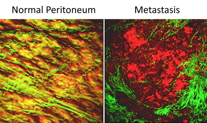 normal and metastatic multiphoton microscopy images