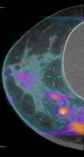 This is a picture of a CT image taken with dedicated breast CT overlayed with a PET scan to reveal areas of high metabolism signaling several tumors