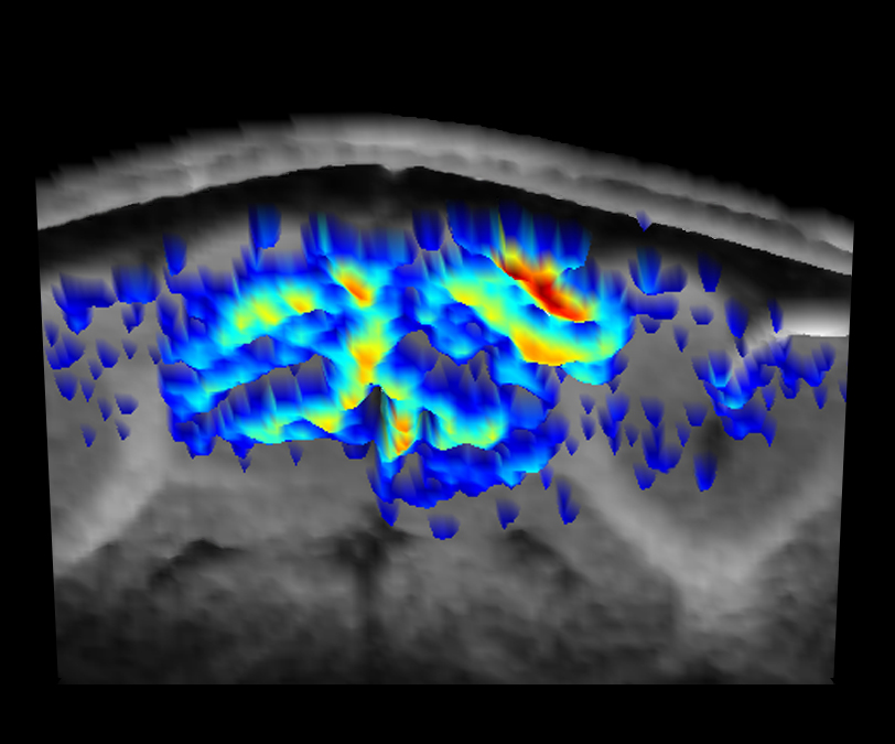 Functional magnetic resonance image (fMRI) of a brain