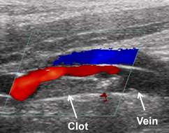 This is an image of a pig blood vessel blocked by a clot as visualized using color Doppler ultrasound. The red corresponds to blood flow and there is less red around where the clot is present.