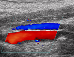 This is picture of an Doppler color ultrasound showing restoration of blood flow following histotripsy.