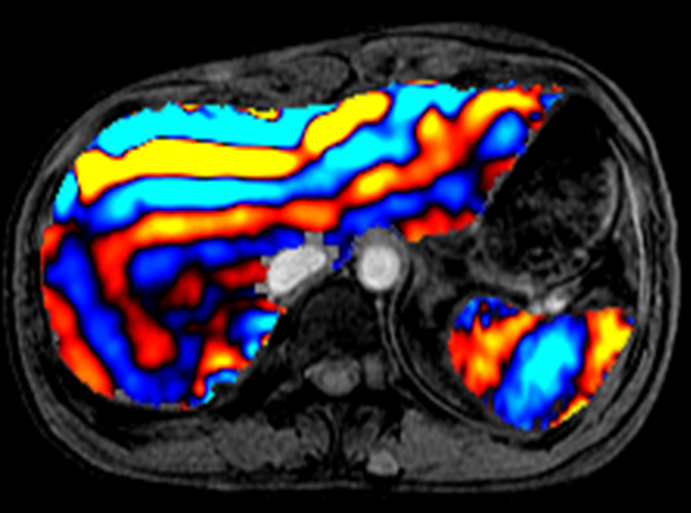 This is an image of the liver using magnetic resonance elastography.  It is multicolored and different colors correspond to the different stiffness of the tissue