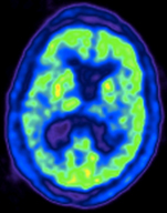 A PET scan of a brain