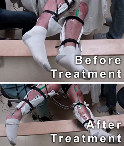 These two photos of the subject's legs suspended in braces show the change in the range of movement from before treatment and after treatment. In the before treatment photo, the subjects legs are positioned close together. In the after treatment photo, the feet are about four feet wide.