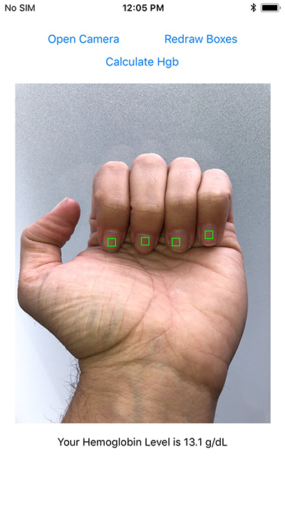 image of fingernail on smartphone