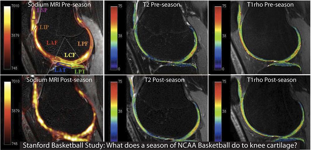 Tres imágenes de IRM de una rodilla antes de una temporada de baloncesto de la NCAA y tres imágenes post-temporada