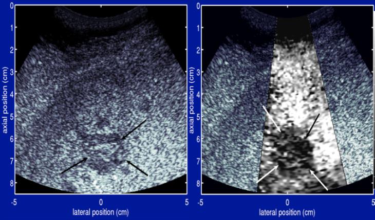 Esta es una imagen de un hígado con melanoma metastásico
