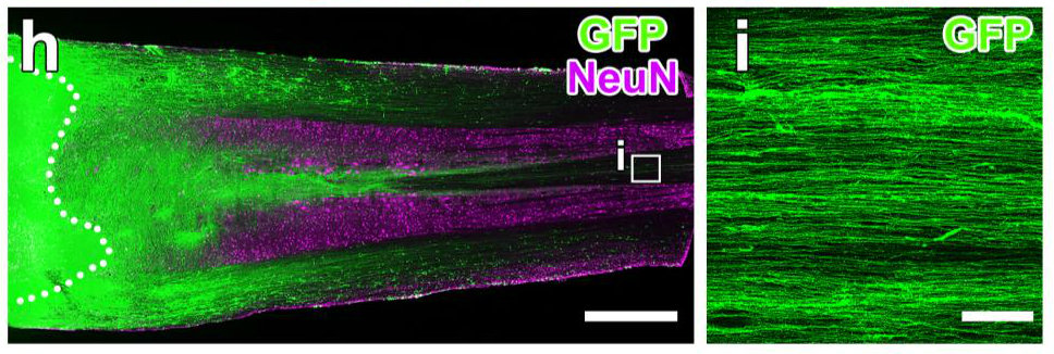 Neural stem cells differentiate in rat spinal injury model