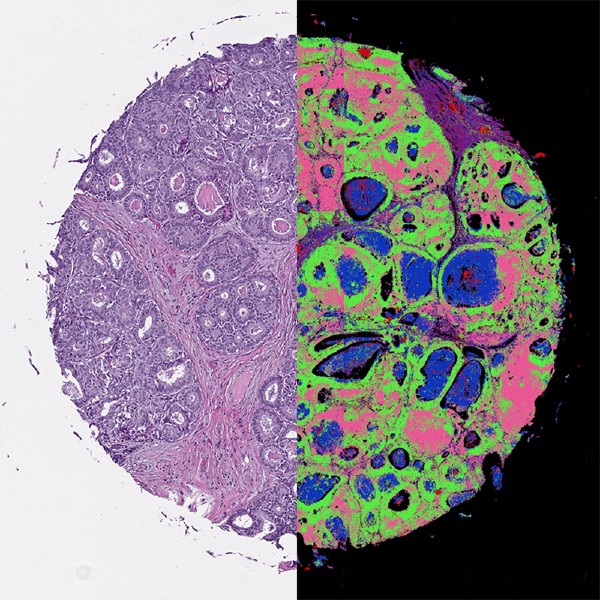 cancer biopsy showing digital and infrared enhanced samples