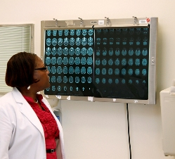 This is a picture of a nurse viewing sequential brain CT scans on an x-ray reader.