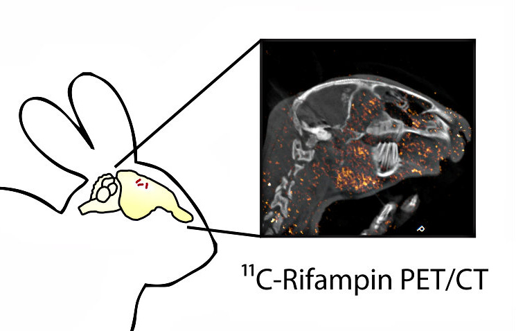 PET image of a rabbit brain following injection antibiotic, rifampin. Orange dots represent limited concentration of rifampin that penetrates the blood brain barrier and reaches TB lesions in the brain.