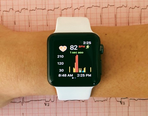 smart watch monitoring heart function
