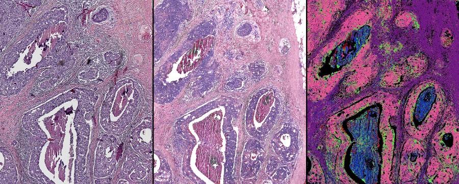 comparison of cancer pathology stains with digital stains of same tissue