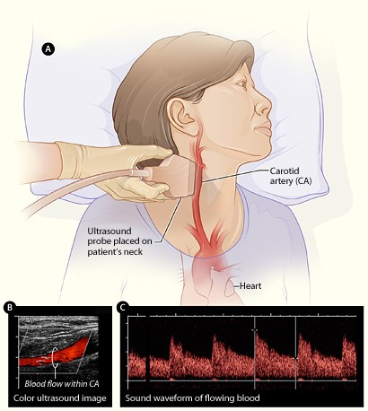 Illustration of a women getting an ultrasound of blood flow in her carotid arteries