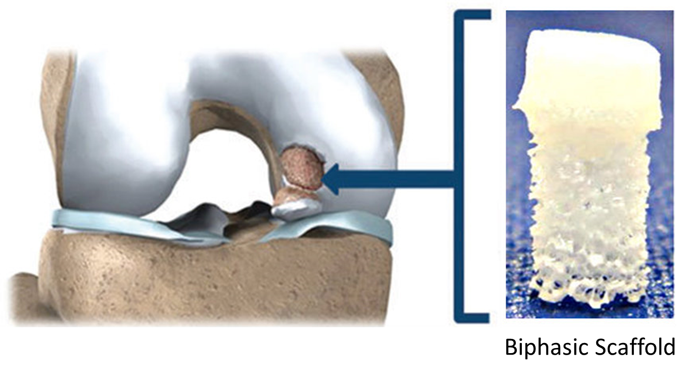 diagram of injured joint cartilage with picture of scaffold used to repair joint defect