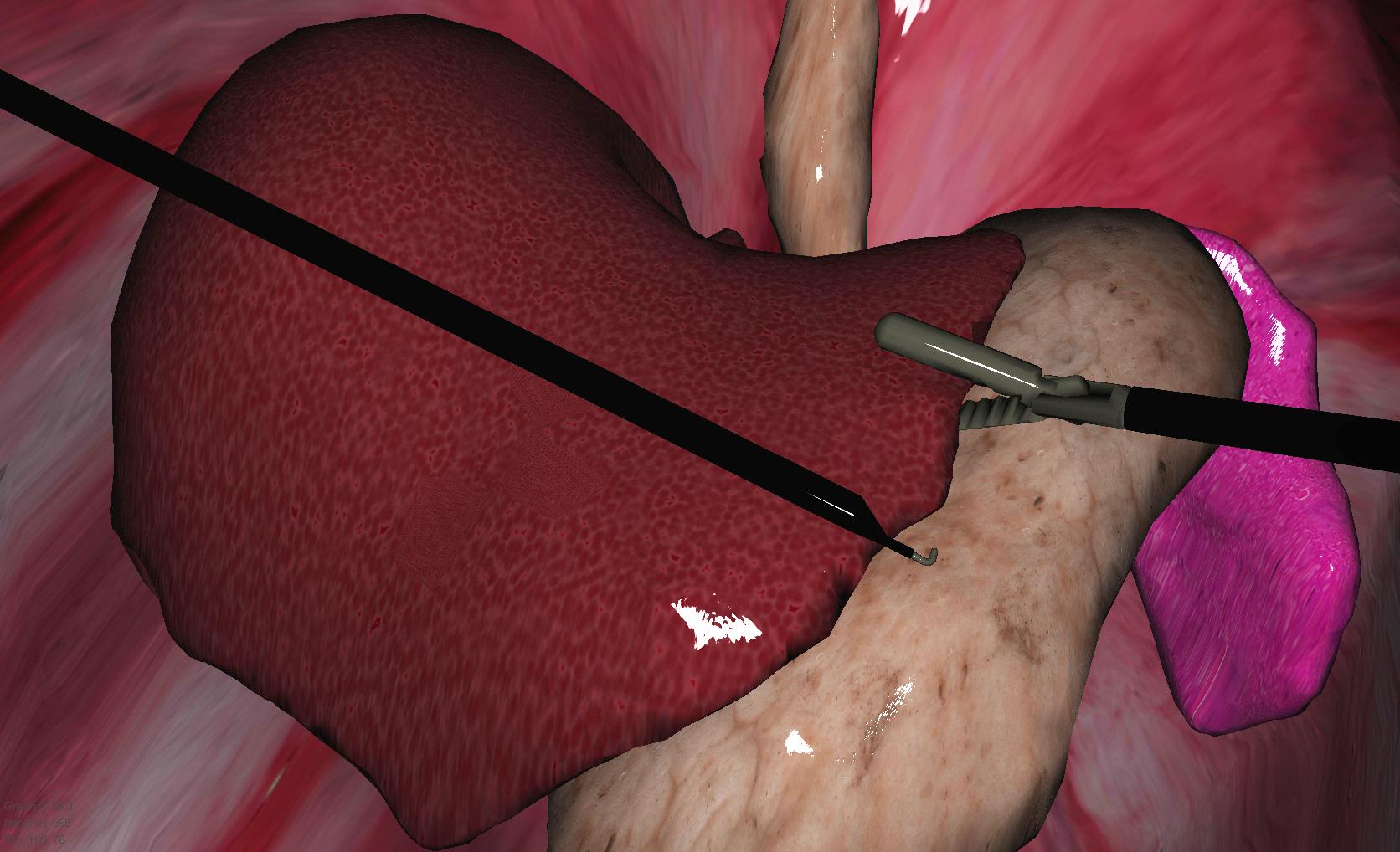 """El método PAFF ofrece a los cirujanos una experiencia más realista de la respuesta al corte, sangrado, humo y presión del tejido. Aquí, instrumentos laparoscópicos virtuales controlados por el cirujano mueven el hígado, que puede """"sentirse"""" y reaccionar de manera diferente a los órganos cercanos, de acuerdo a características únicas de presión de tejido. Si este movimiento crea sangrado o humo, el simulador añadirá dichas variables, permitiendo al cirujano que practique el procedimiento con visibilidad limitada y, quizá, respuesta cambiante al tejido."""