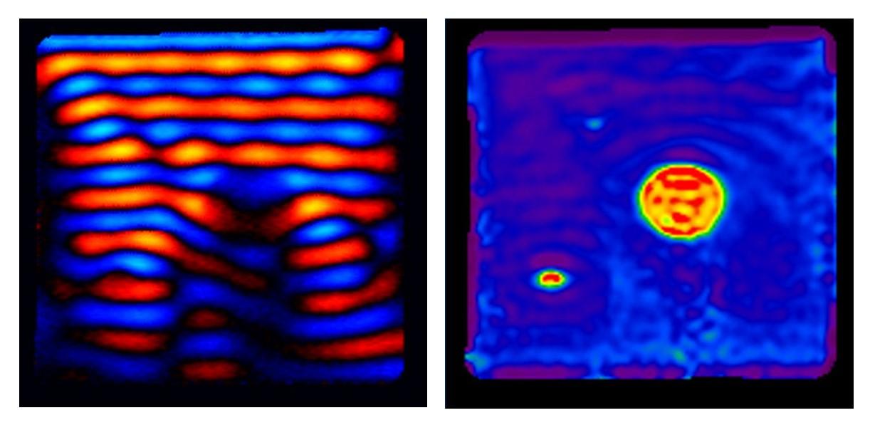 Description of magnetic resonance elastography (MRE) technique