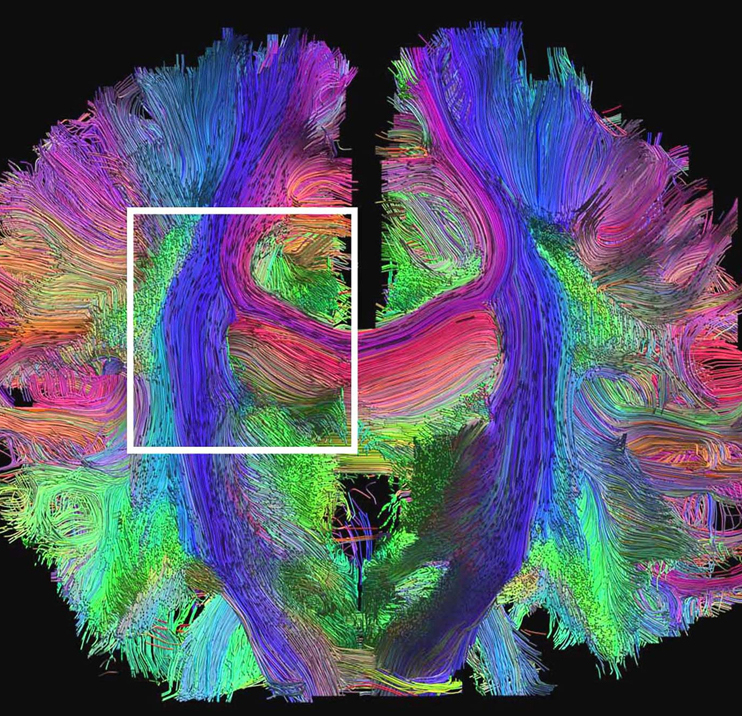 Human brain scan using MRI/DTI