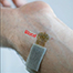 Blood flow sensor