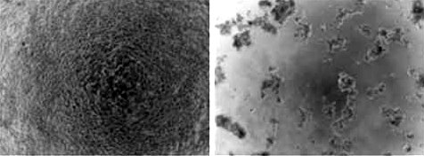 Cells killed by gene therapy technique