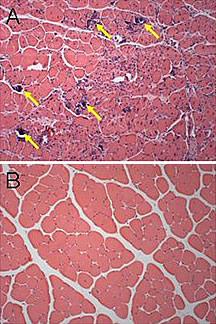 Leyenda de la fotografía: Algunos polímeros nuevos, como por ejemplo el C32 de MIT, son capaces de liberar drogas más eficientemente que los polímeros existentes que se utilizan en terapia genética. En la imagen A, se observa un músculo que ha sido inyectado con ADN y un polímero más viejo, y que presenta daño celular por calcificación (indicado por las flechas). En la imagen B, se observa un músculo que ha sido inyectado con el nuevo polímero C32 de MIT y el ADN, y que no presenta un daño similar. Las fotografías aparecen por gentileza de la Academia Nacional de Ciencias de EE. UU. Fotografías originalmente publicadas en los Procedimientos de la Academia Nacional de Ciencias (Proceedings of the National Academy of Sciences). Copyright © 2004.