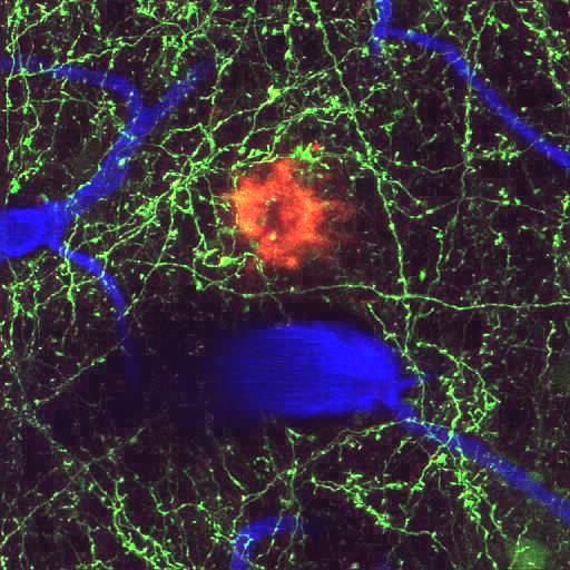"""Una placa senil individual (roja) junto con neuritas que expresan proteína amarilla fluorescente (verde) del cerebro vivo de un modelo de cerebro de ratón con Alzheimer. Los vasos sanguíneos son visibles con angiografía fluorescente después de inyectarlos con """"Texas red dextran"""" (azul). La placa mide aproximadamente 30 µm de diámetro y unos 150 µm de profundidad bajo la superficie del cerebro. Imagen adquirida por Mónica García-Alloza."""