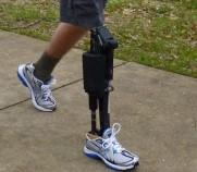 prosthetic robotic joints
