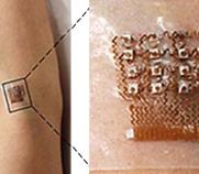 ultrasound patch on arm that measures blood pressure