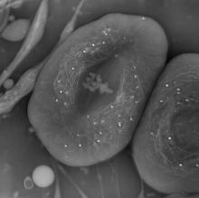 A black and white image of three cells