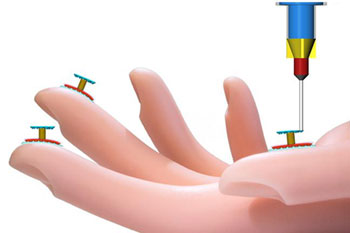 Illustration of tactile sensors printed onto a human hand by novel 3D printer.