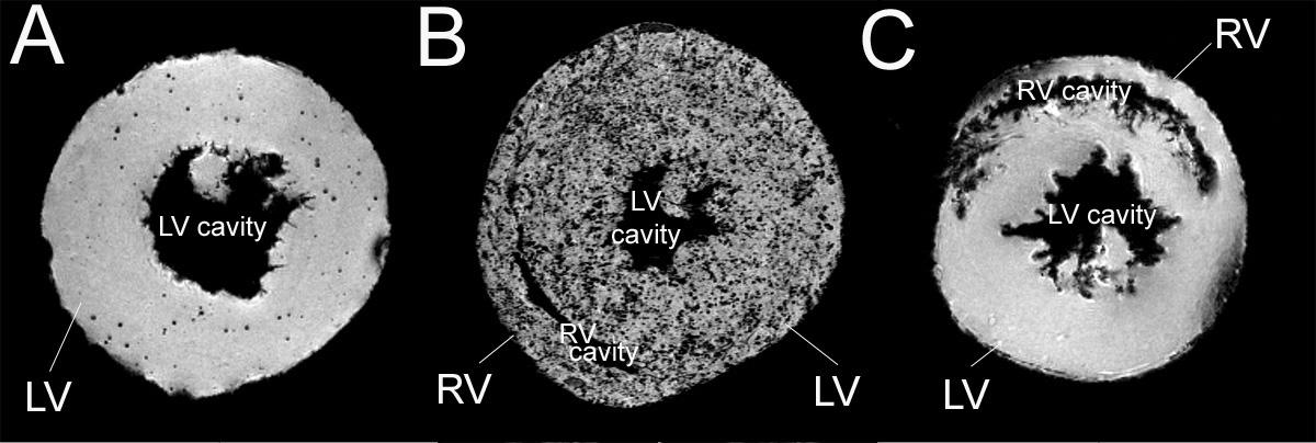 Estos corazones transplantados de rata muestran rechazo muy temprano (A), rechazo moderado (B) y no rechazo (C). Cada punto oscuro corresponde a un macrófago marcado con micropartículas de óxido de hierro paramagnético (MPIO). La imagen se tomó con microscopía de resonancia magnética. LV= ventrículo izquierdo; RV= ventrículo derecho. Courtesia de Dr. Chien Ho