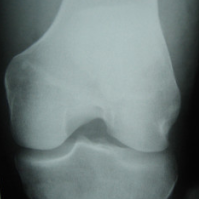 This is a thumbnail image of an x-ray of the knee joint