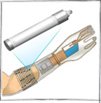 Implantable Sensors for Prosthesis Control